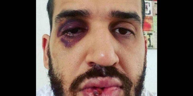 Médico é agredido depois de defender lockdown em Toledo, no Paraná - Foto: Reprodução